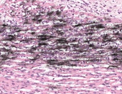 Kardiopathologie Institut F 252 R Pathologie Und Neuropathologie